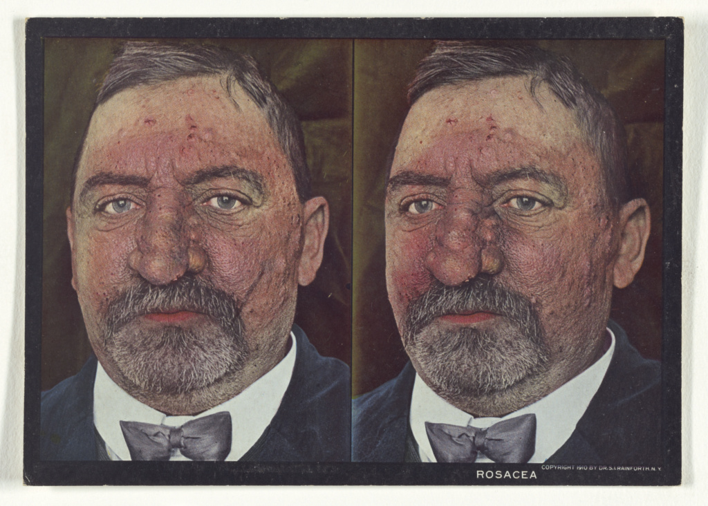 Rosacea; Dr. Selden I. Rainforth (American, 1879 - 1960); 1910; Color Photomechanical; 84.XC.759.29.74; The J. Paul Getty Museum, Los Angeles; Rights Statement: No Copyright - United States