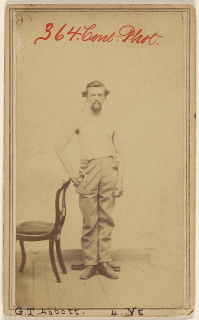 G.T. Abbott 4. Vt. [Civil War victim]; Unknown maker, American; 1864–1870; Albumen silver print; 84.XD.1157.1962; The J. Paul Getty Museum, Los Angeles; Rights Statement: No Copyright - United States