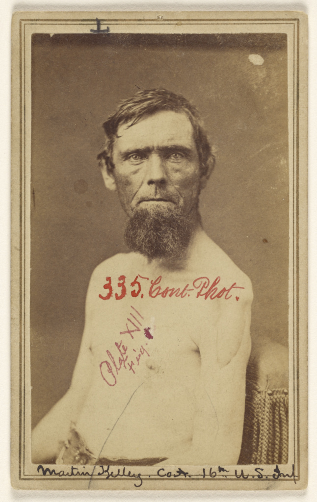 [Martin Kelley, Civil War victim]; Attributed to William H. Bell (American, 1830 - 1910); 1862–1870; Albumen silver print; 84.XD.1157.2243; Rights Statement: No Copyright - United States