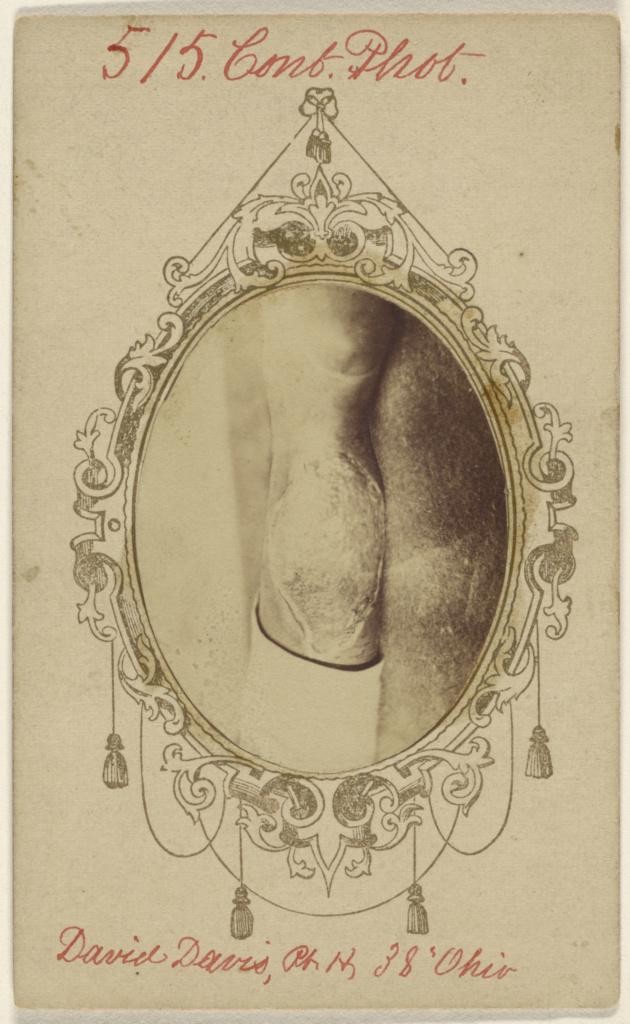 [David Davis, private, Civil War victim]; Unknown maker, American; 1862–1870; Albumen silver print; 84.XD.1157.2245; The J. Paul Getty Museum, Los Angeles; Rights Statement: No Copyright - United States